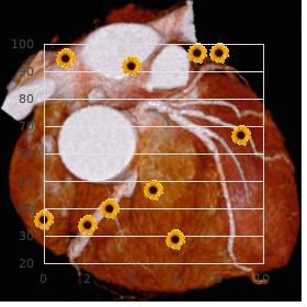 Lipomatosis central non-encapsulated