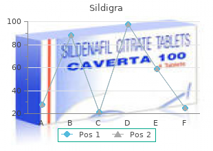 purchase sildigra 50mg fast delivery