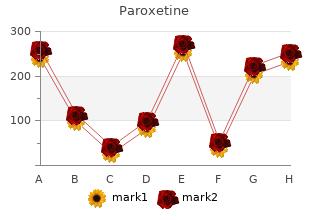 buy paroxetine line
