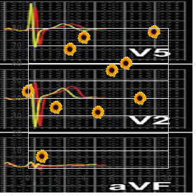 Radius absent anogenital anomalies