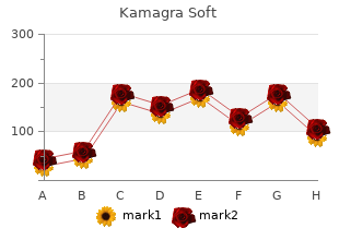 generic 100 mg kamagra soft otc