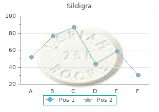 order sildigra with visa