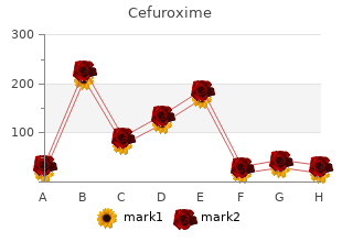 buy discount cefuroxime 250 mg on-line