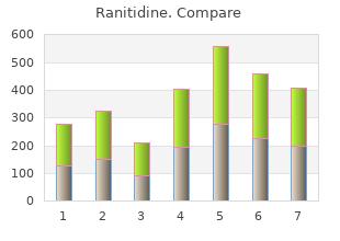 discount 150 mg ranitidine with visa